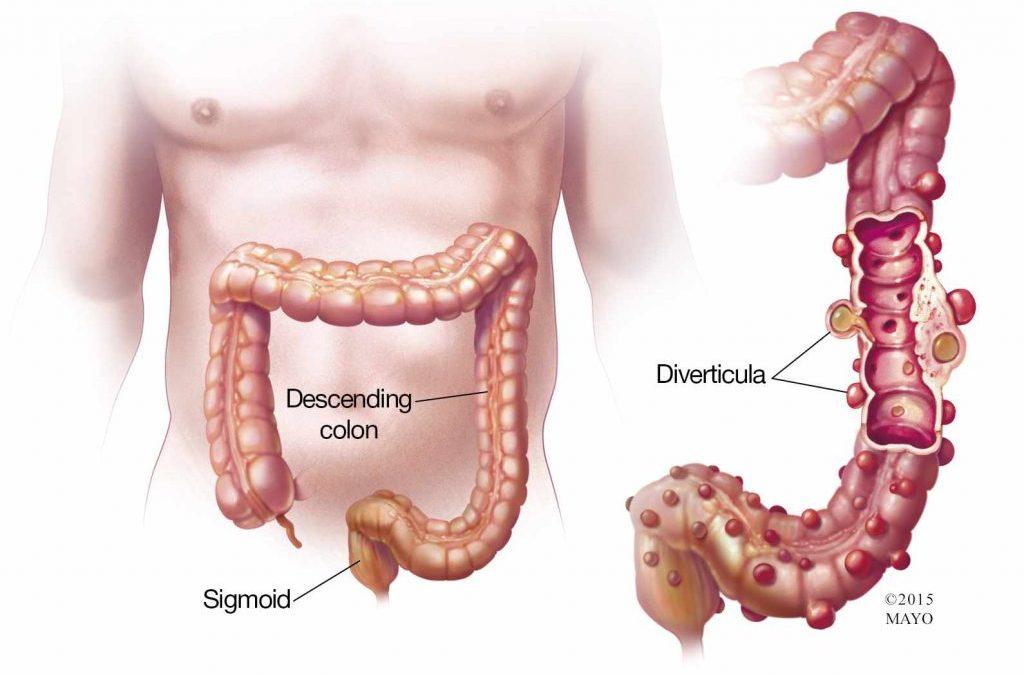 Healing Diverticulitis