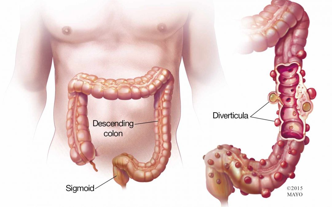Healing Diverticulitis Naturally